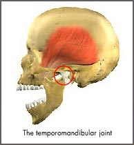 TMD-Smile-Zone-Orthodontics